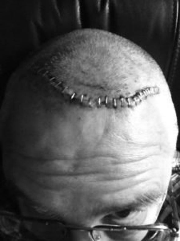 Journalists Offer Sharply Divergent Views of Brain Implants for Depression