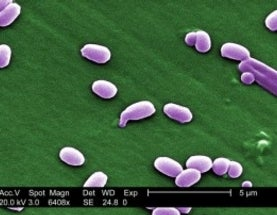 Anthrax Blunder Reveals Deadly Potential of Accidents