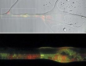 artful amoeba soil fungi serve bacterial highways dating services