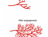 Hallmarks of Cancer 5: Sustained Angiogenesis