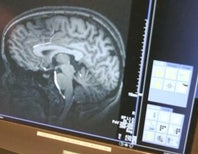 Creativity in the Brain