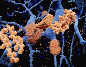 Could Alzheimer's Be a Reaction to Infection?