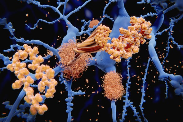 Could Alzheimer's Be a Reaction to Infection? - Scientific