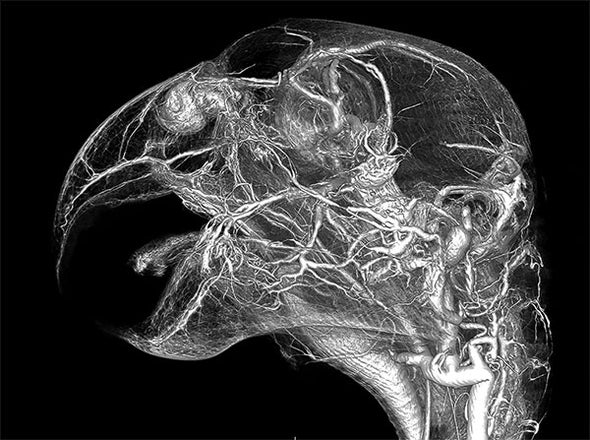 A New View of the Cardiovascular System in 3-D