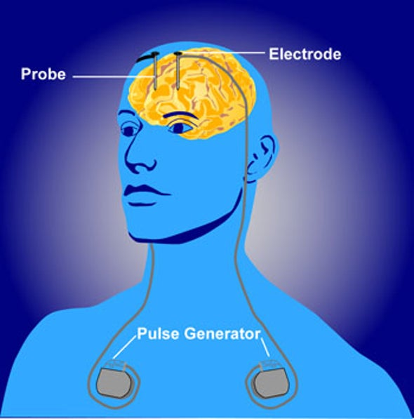 Much-touted Deep-Brain-Stimulation Treatment for Depression Fails Another Trial
