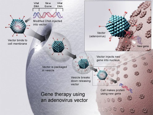 Leukemia : first gene therapy in the United States