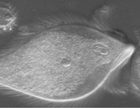 Surprise Discovered Inside Shaggy, Shimmying Protists [Video]