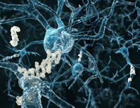 Review: <i>NOVA</i> Episode on the Vexing Search for Drugs to Prevent and Treat Alzheimer's