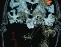 A New Idea for Treating Alzheimer's
