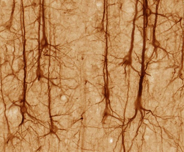 How a Curious Condition Solved a Neuroscientific Mystery