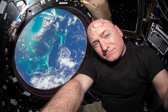 Did Astronaut Scott Kelly Stay in Space <i>Too</i> Long? [Video]
