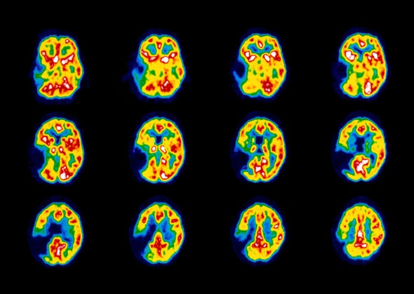 We've Made Astonishing Progress in Treating Stroke