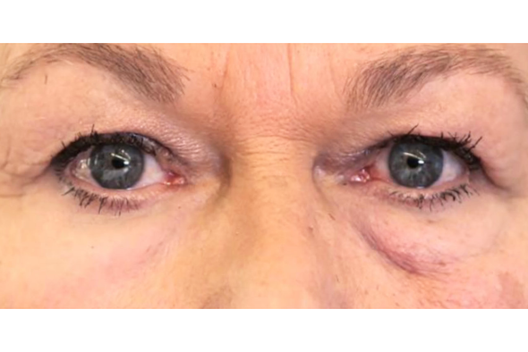 Spanx for the Face: A Polymer Rejuvenates Aging Skin