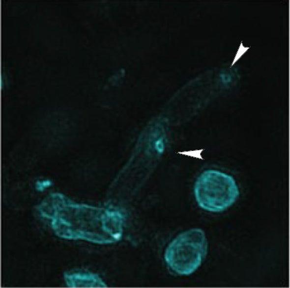 Shameless Bacterial Predator Remodels Its Own Prey