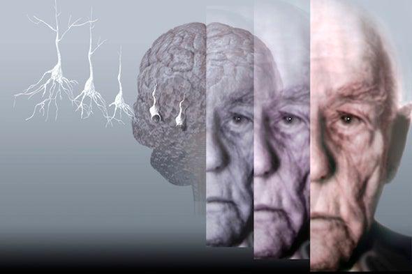 Battling Alzheimer's through Better Access to the Brain