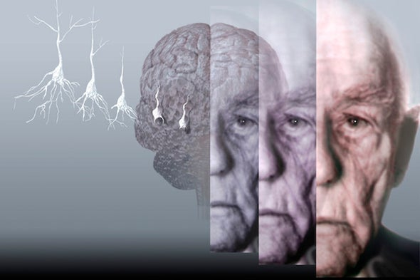Battling Alzheimer's through Better Access to the Brain