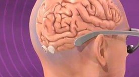 A New Type of Visual Prosthesis