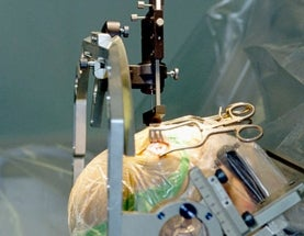 Fat Tuesday: Neurosurgery versus bariatric surgery in obesity