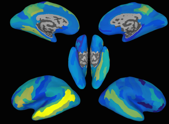 How the Brain Decodes Sentences