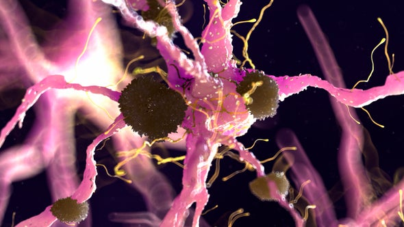 We Need New Ideas for Fighting Alzheimer's