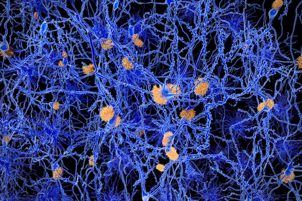 A New Idea about What Triggers Alzheimer's