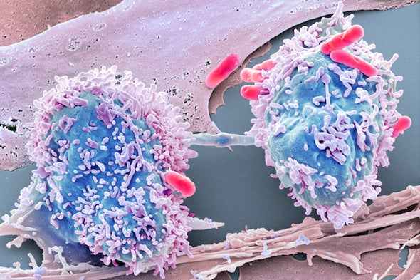 A New Idea about How Cancer Begins
