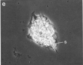 Tiny Cell Grows Giant Death Spike and Lives to Grow Another