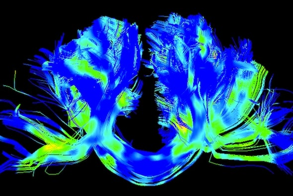 A New Way to Help Manage Parkinson's