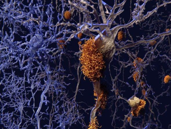 Alzheimer's & Dementia - Cover