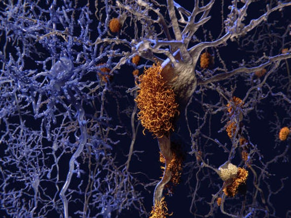 The Case for Transmissible Alzheimer's Grows