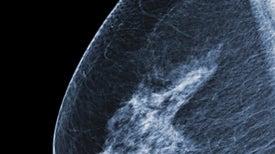 La Sociedad Estadounidense contra el Cáncer suaviza las recomendaciones en torno a mamografías