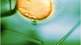 Una calculadora online anticipa las probabilidades de tener un bebé por fertilización in vitro
