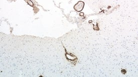 Emergen nuevas evidencias que sustentan la teoría de que el alzhéimer es transmisible