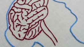 El cerebro de las anoréxicas responde de manera diferente a la sensación de hambre