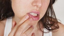 Dos de cada tres personas en el mundo tienen herpes
