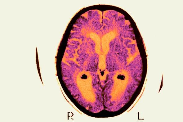 Fracaso en ensayo sobre el alzhéimer no mata a la principal teoría sobre la enfermedad