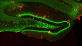 La optogenética permite recuperar la memoria a ratones con alzhéimer