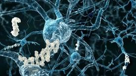 Nuevas pistas muestran que la poda incontrolada de sinapsis neuronales puede ser la base del alzhéimer