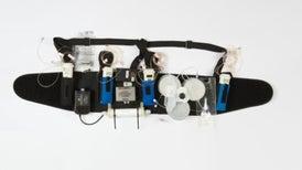 Riñón artificial portátil es una esperanza para los pacientes en diálisis
