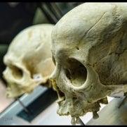 Los orígenes del alzhéimer están ligados al surgimiento de la inteligencia humana