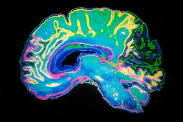 Proyecto global para mapear el cerebro despierta emoción y dudas