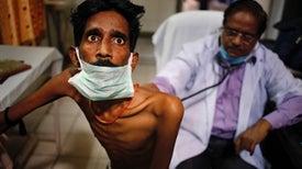 Tuberculosis resistente a medicamentos, hecha en India