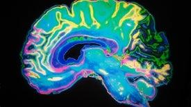¿En qué se diferencia el cerebro de un matemático del de un simple mortal?
