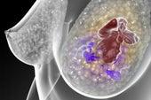 Examen de sangre podría predecir recaídas de cáncer de mama