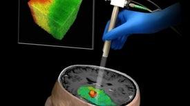 Nueva tecnología de imágenes en 3D promete facilitar las neurocirugías