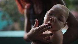 La variabilidad geográfica en los defectos de nacimiento causados por el zika confunde a los científicos