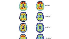 Droga contra el alzhéimer muestra resultados prometedores en pequeño ensayo
