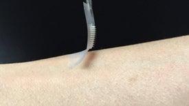 Crean parches de insulina que podrían reemplazar a las inyecciones en el tratamiento de la diabetes