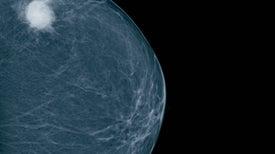 Científicos publican el primer modelo de riesgo para cáncer de mama en hispanas