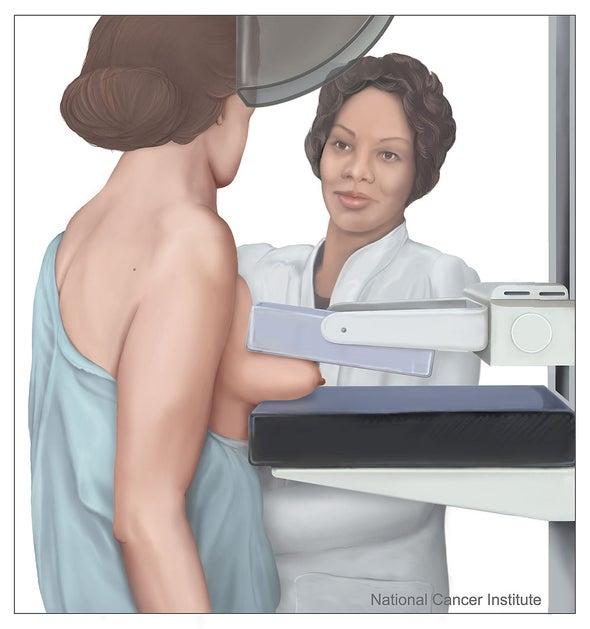 Una sola mutación genética causa el 10% de los cánceres de mama en el centro de Colombia